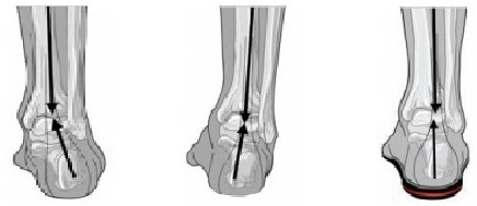 ankles with orthotics